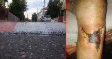 Necazul unui pensionar cu moped. Cu piciorul rupt și dator 360 de milioane la spital
